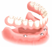 Permanent bottom arch denture supported by Dental Implants